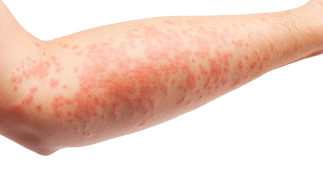 psoriasis auto immuunziekte